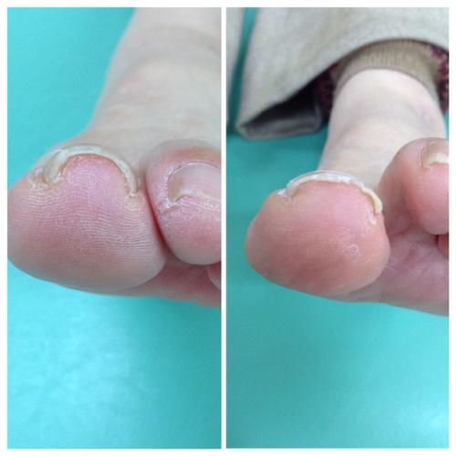 痛い!豊明市の巻き爪治療
