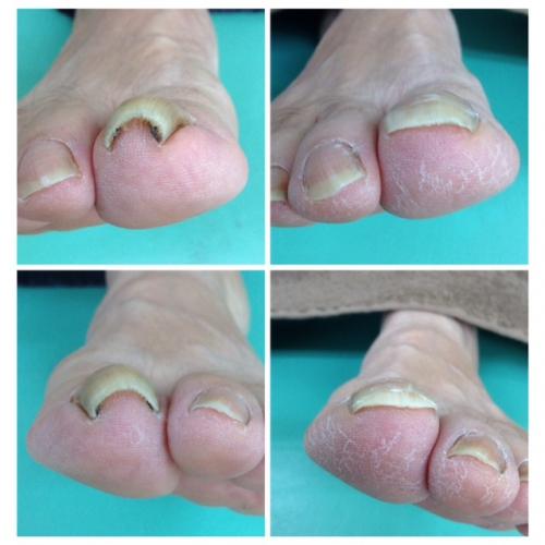 巻き爪治療!基本的な治し方で