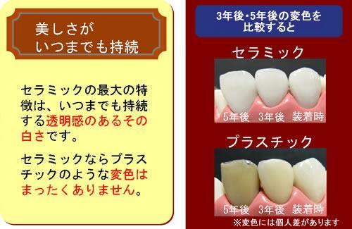 足利市歯科医療情報 審美歯科