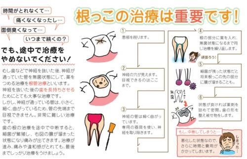 足利市歯科医療情報 保存治療(根の治療)