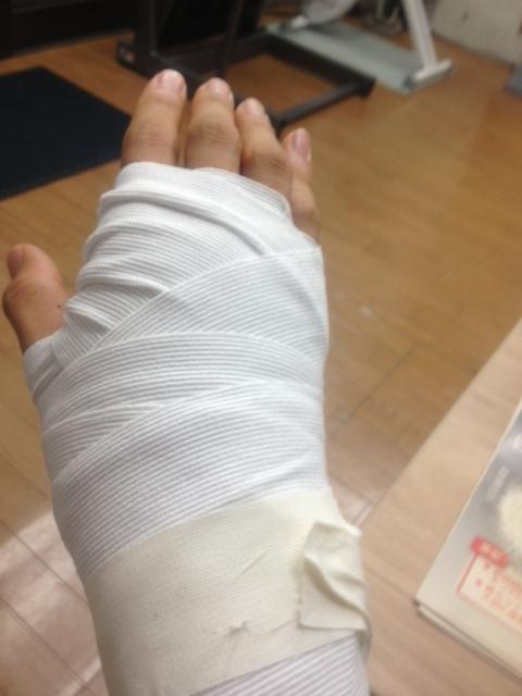 外傷による手首の痛み(TFCC損傷)