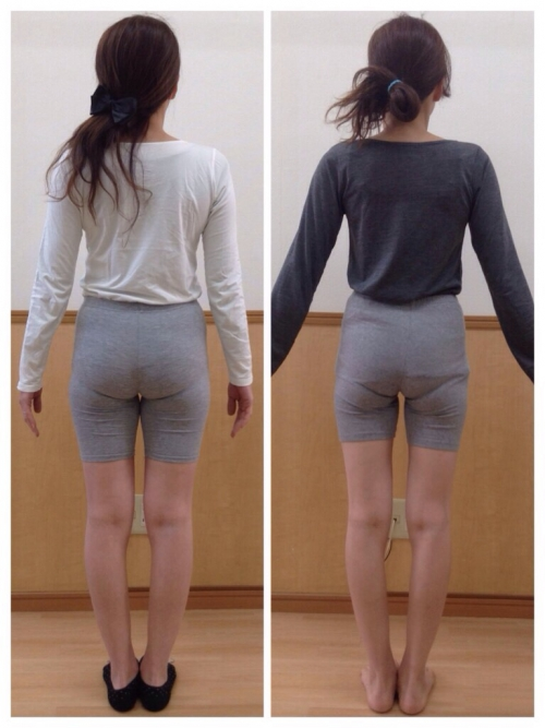 産後の股関節痛と骨盤