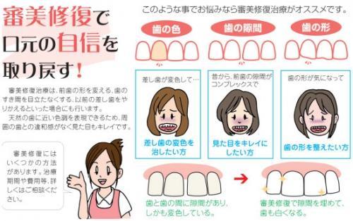 足利市歯科医療情報 審美歯科(審美修復)