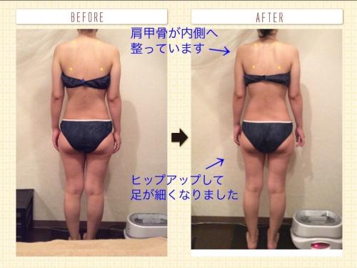 骨盤のゆがみ、下半身太り、むくみを改善したい!