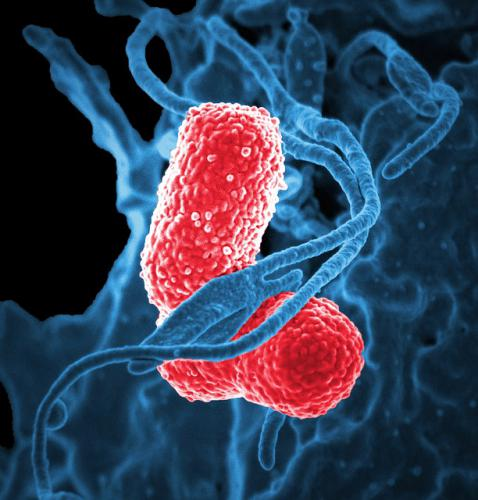 慢性耳炎になると感染してくる嫌気性菌