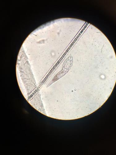 耳炎の原因となる寄生虫のニキビダニ