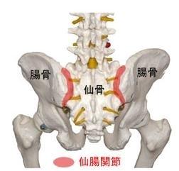 股関節 股関節痛 変形性股関節症