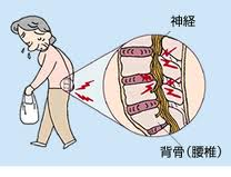 足がしびれる長く歩けない脊柱管狭窄症で手術をしたくない