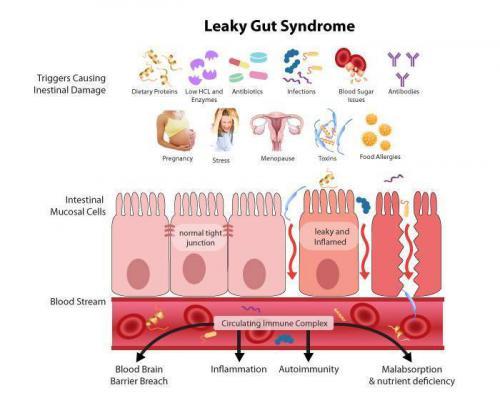 LGS=リーキーガット症候群(腸管壁浸漏症候群)とは?