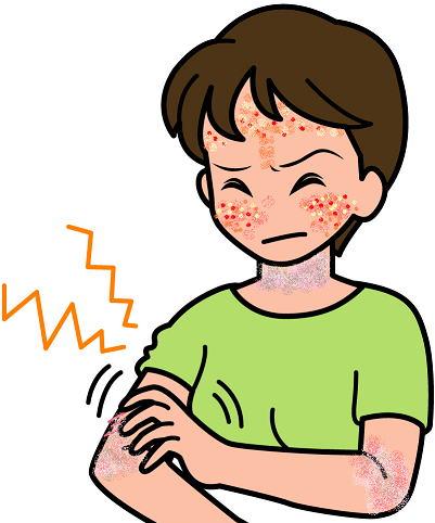 大人アトピーが悪化する原因 精神的なストレス