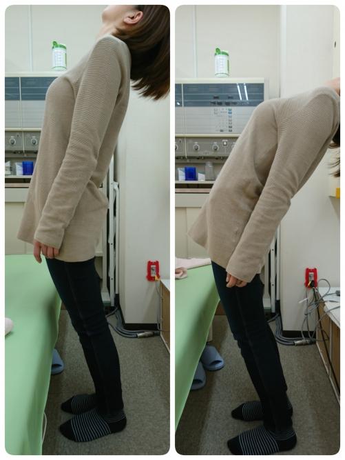 ぎっくり腰や寝違えにはハイボルト療法 札幌市西区琴似整骨院