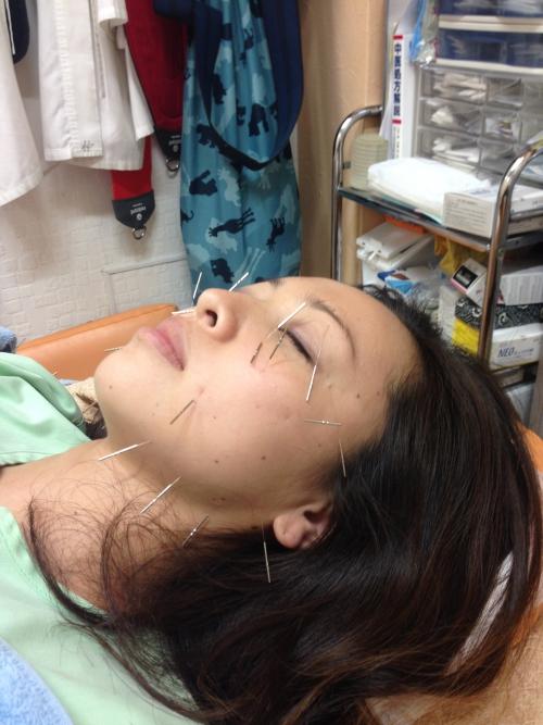 美容鍼(美顔鍼)といったらオリンピア鍼灸整骨院