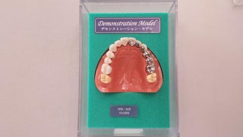 足利市歯科医療 こだわりの自費治療デモンストレーションモデル