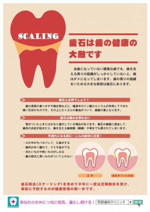 足利市歯科医療情報 歯石は歯の健康の大敵です