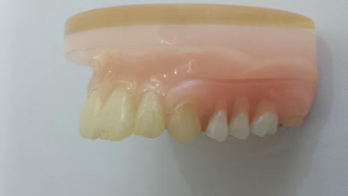 足利市歯科医療情報 あなたに合った快適な入れ歯
