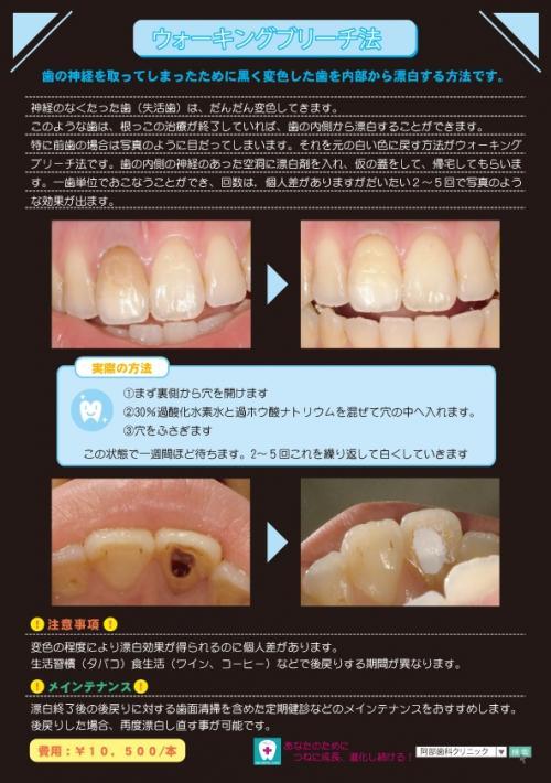 足利市歯科医療 歯の漂白法(ウォーキングブリーチング法)