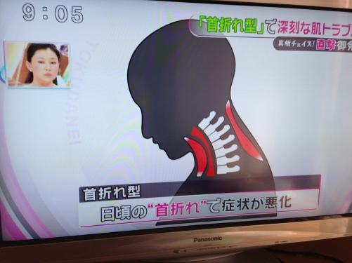 頭痛と肩こりの関係について