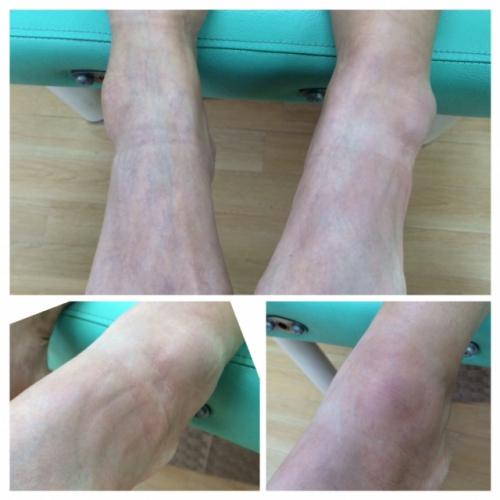 足首の捻挫治療!階段で痛い