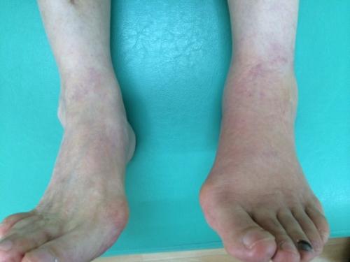 豊明市の女性、足首の捻挫治療