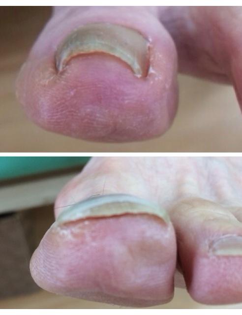 痛っ!名古屋市緑区の巻き爪治療