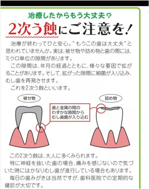 足利市歯科医療情報 虫歯治療