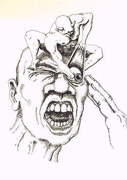 頭痛に関するあくまで一般論的考察