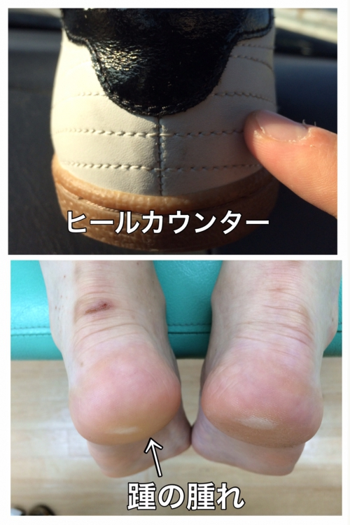 踵骨棘の痛みとヒールカウンター