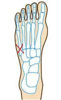 足の骨折について