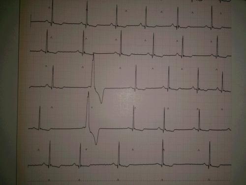 心電図、心エコー、レントゲン