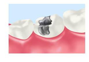 『アマルガム:歯の詰め物』