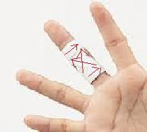 突き指のテーピング