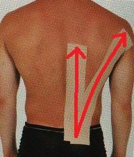 背中の痛みについて