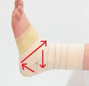 足関節捻挫のテーピング