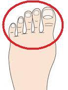 足指の怪我について