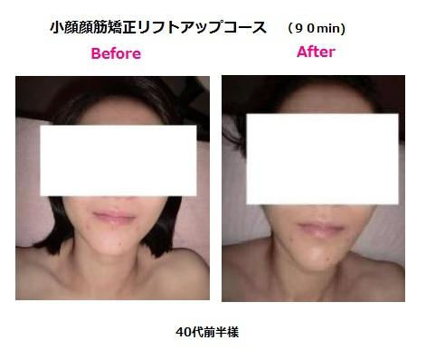 10%OFFのフェイシャルメニュー&小顔顔筋矯正リフトアップ