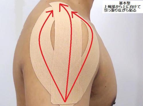肩の痛みのテーピング