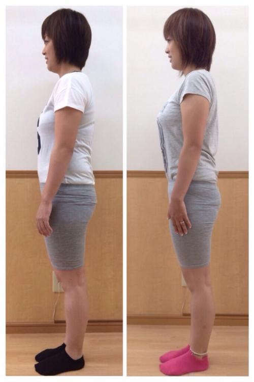 産後太りは解消できる?