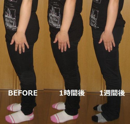 骨盤矯正でダイエット&姿勢改善