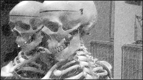 首の痛み ブラジュリアン柔術