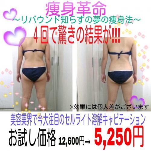 話題のキャビテーションで驚きのサイズダウン!!!