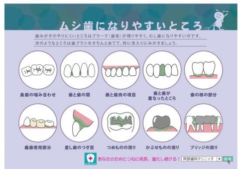 足利市歯科医療情報 むし歯になりやすいところ