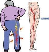 変形性腰椎症と座骨神経痛