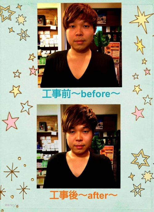 Before??After
