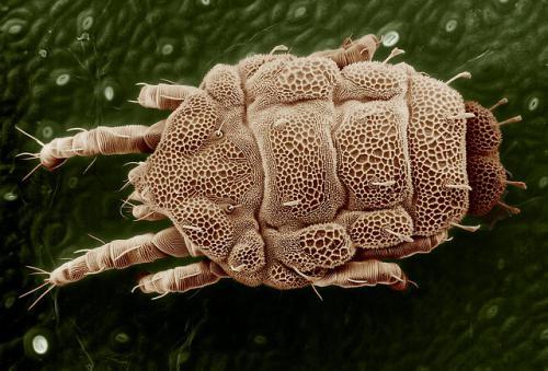 耳炎をおこす原因となる寄生虫