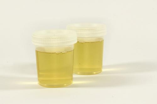 スクリーニング検査の尿素窒素と尿比重について