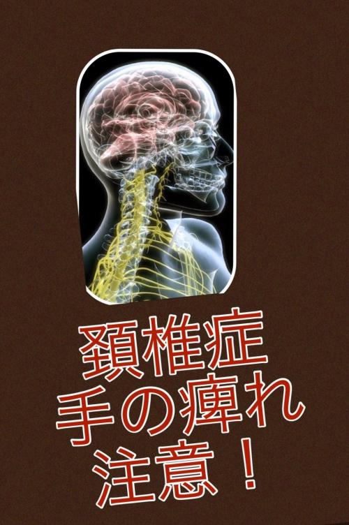 新百合ヶ丘から頚椎症 手の痺れ 整体院