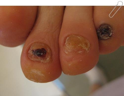 巻爪と爪水虫の関係 3