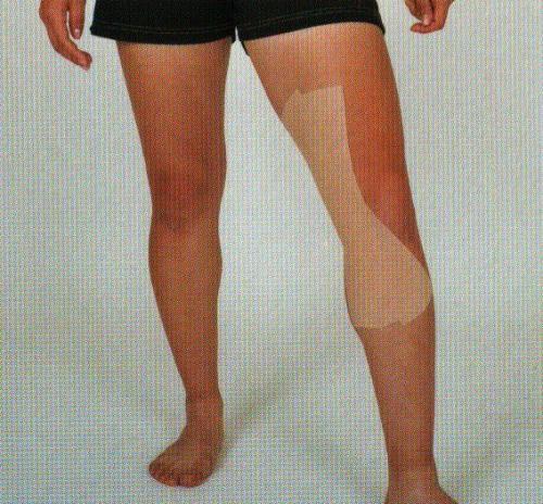 膝の鵞足炎のテーピング