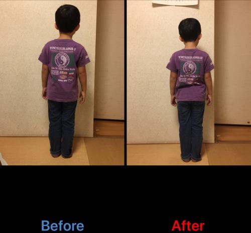 背骨、骨盤まわり身体のバランス整え 2回目