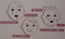 人気メニュー☆お顔の歪み矯正「シンメトリー整顔」